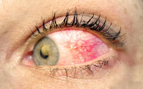 Augenlinse Aufbau, Funktionsweise und mgliche Erkrankungen