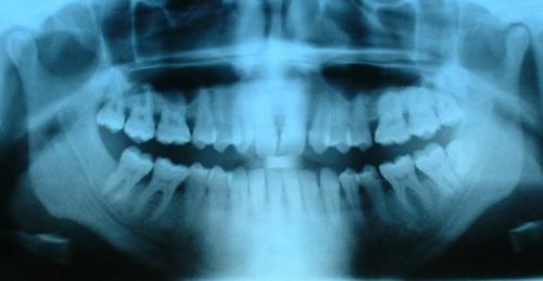 X光片显示所有的牙齿