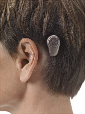 file oticon medical bone anchored hearing aid sound