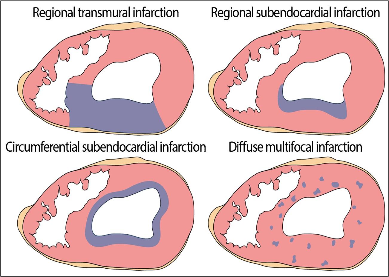 myocardial infarction patterns, CC-BY-3.0