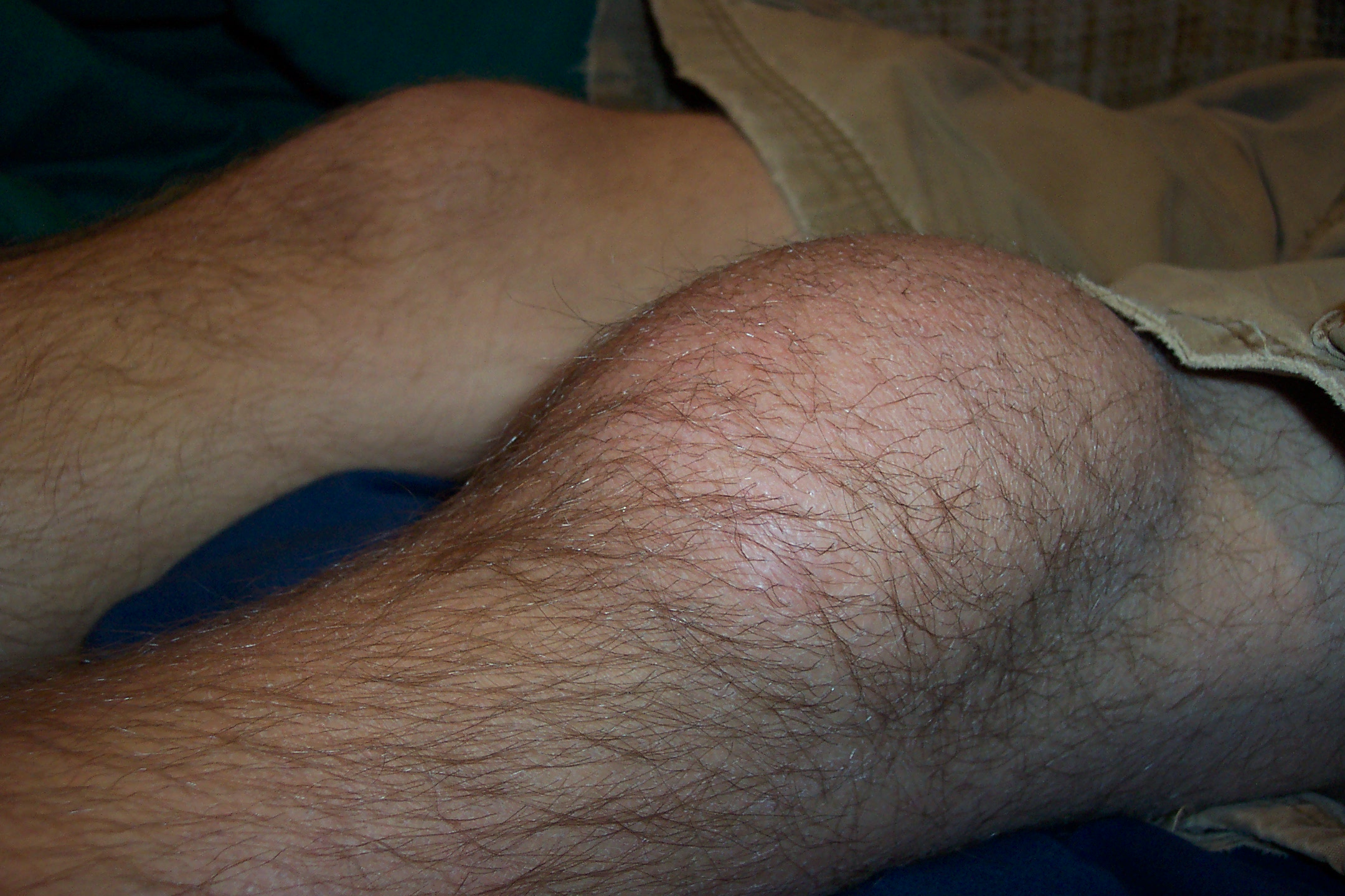 Description Prepatellar Bursitis JPG