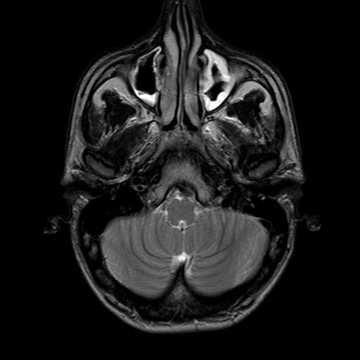 Rhinorrhea  U2013 Symptoms  Causes  Diagnosis And Treatment