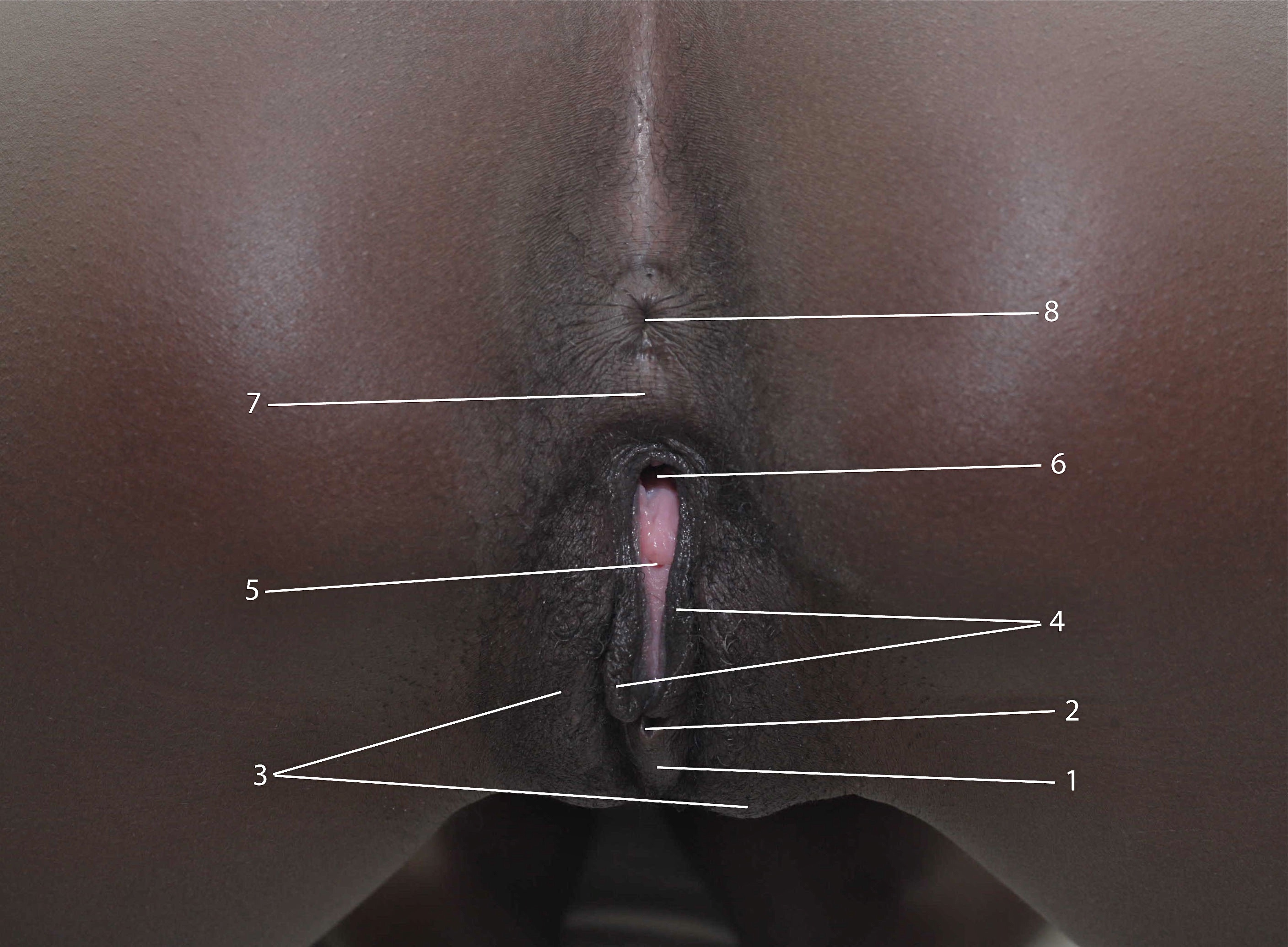 Clitoris size pics