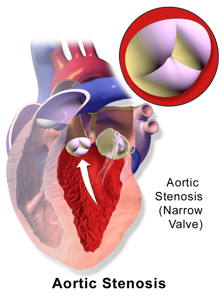 FileBlausen 40 AorticStenosis.png   Wikimedia Commons