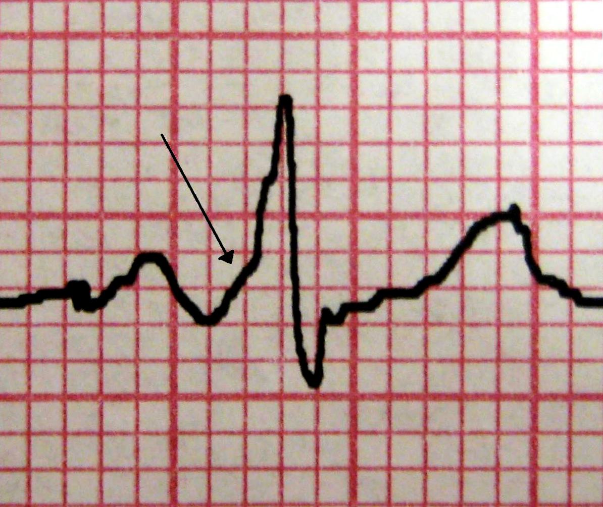 Elektrokardiogramm – Wikipedia