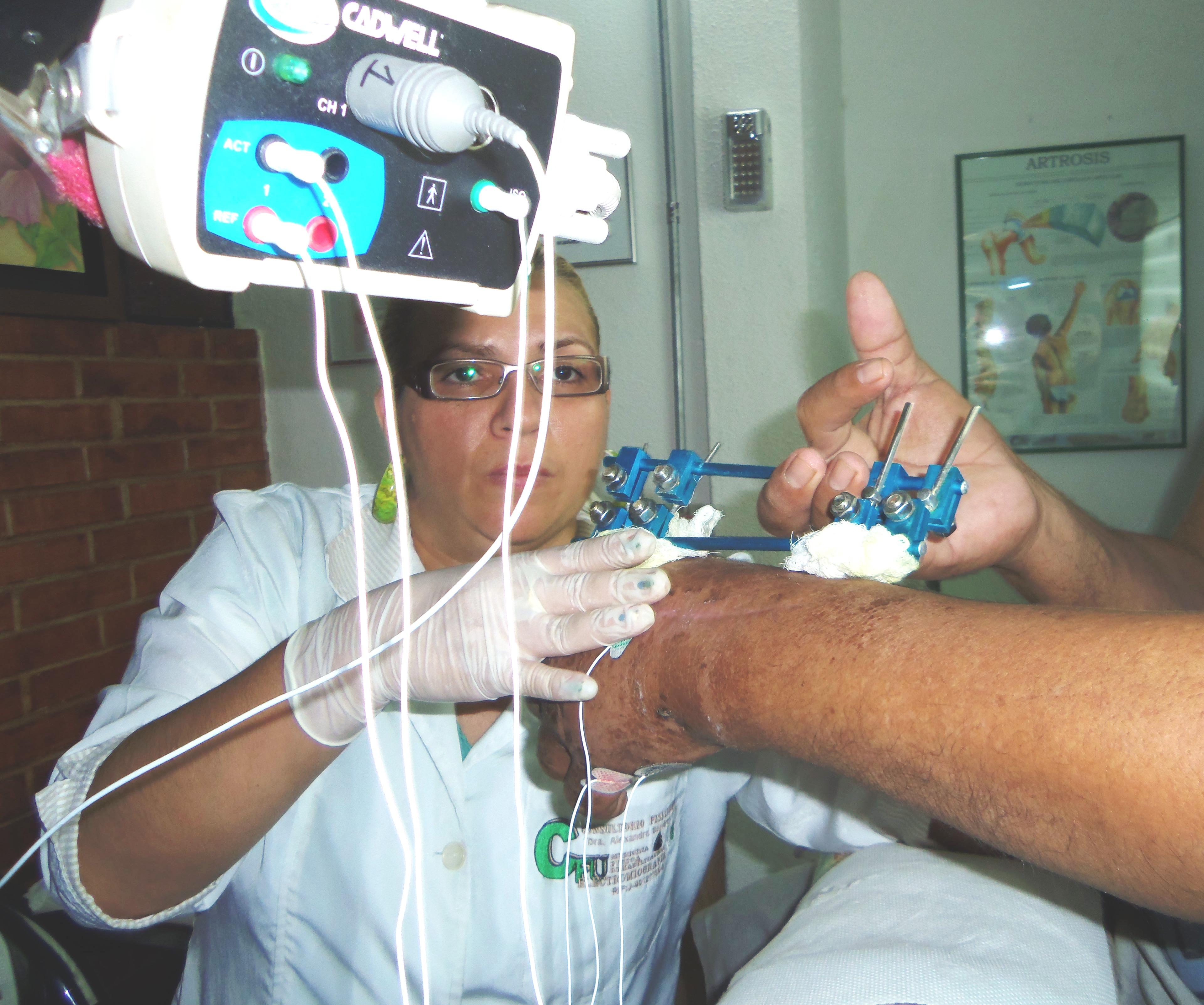como se realiza una electromiografia de miembros superiores
