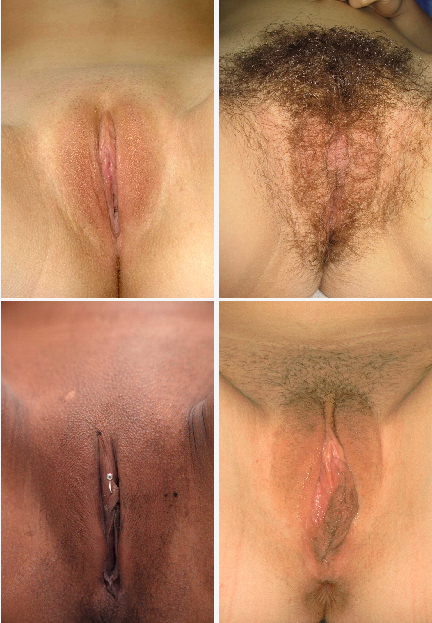 Racist ass shaven pubic vagina granny's want have