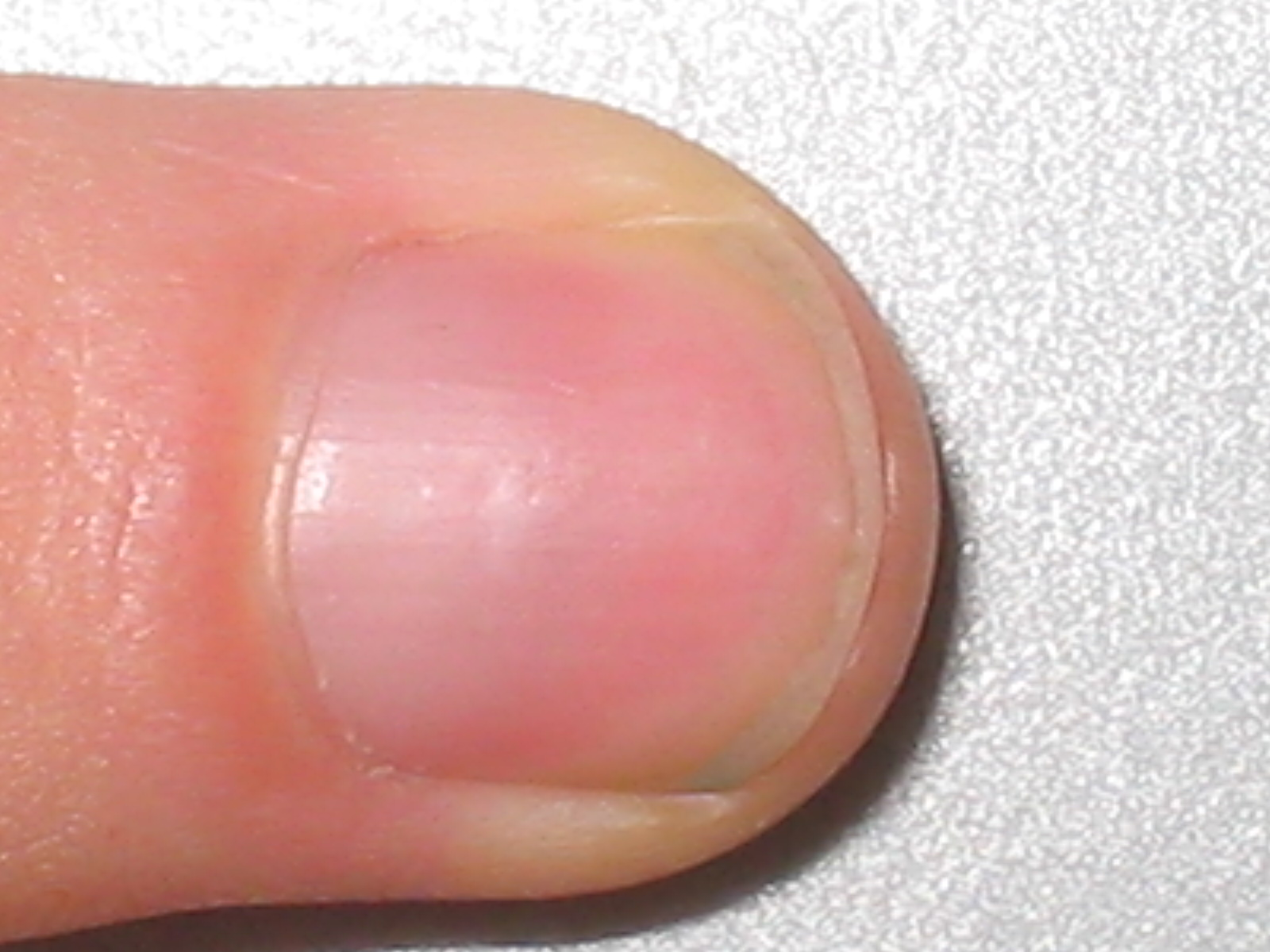 hvad består negle af