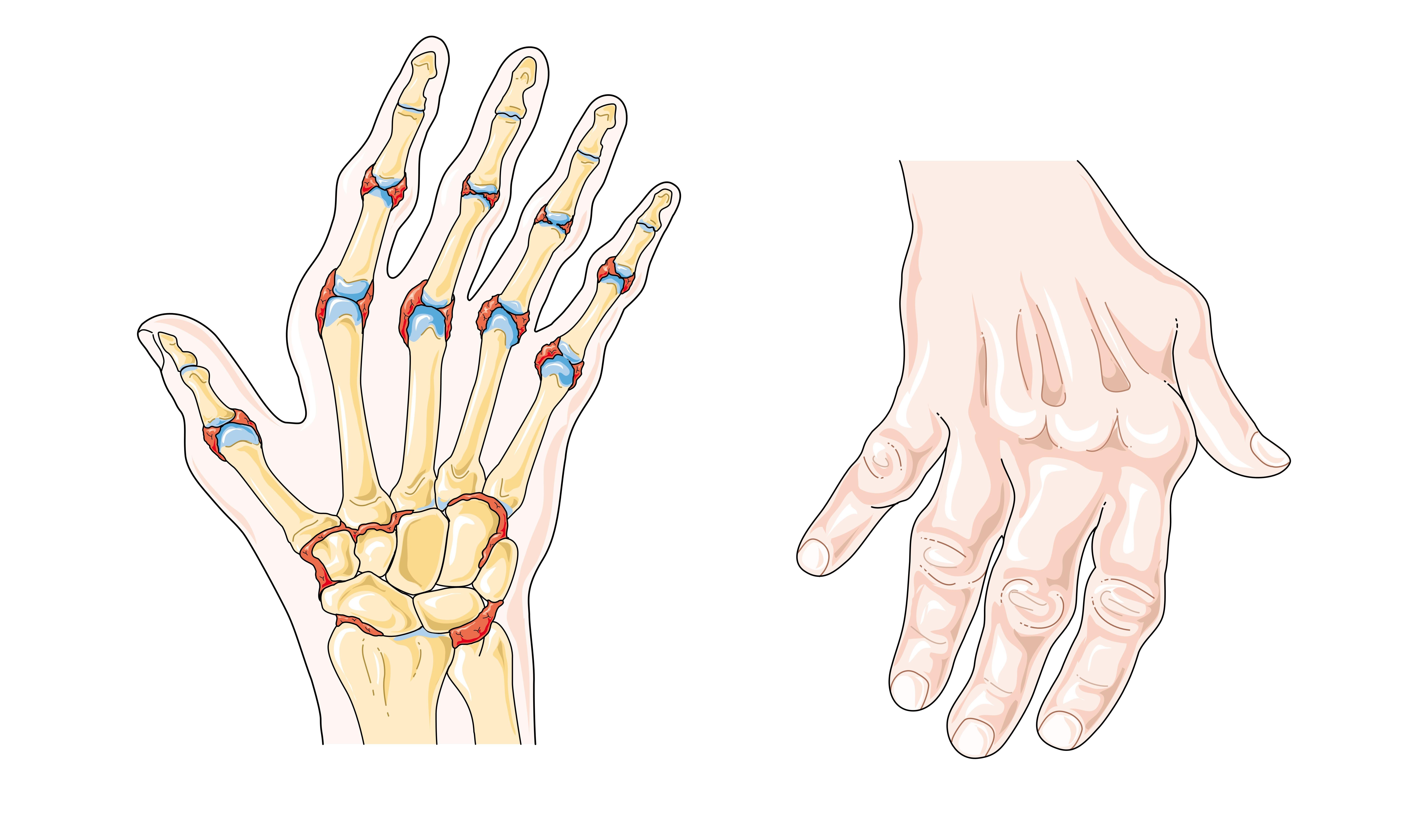 mit kell csinálni a csípőízületek fájnak ízületi gyulladást és fájdalom ingadozást figyelnek meg