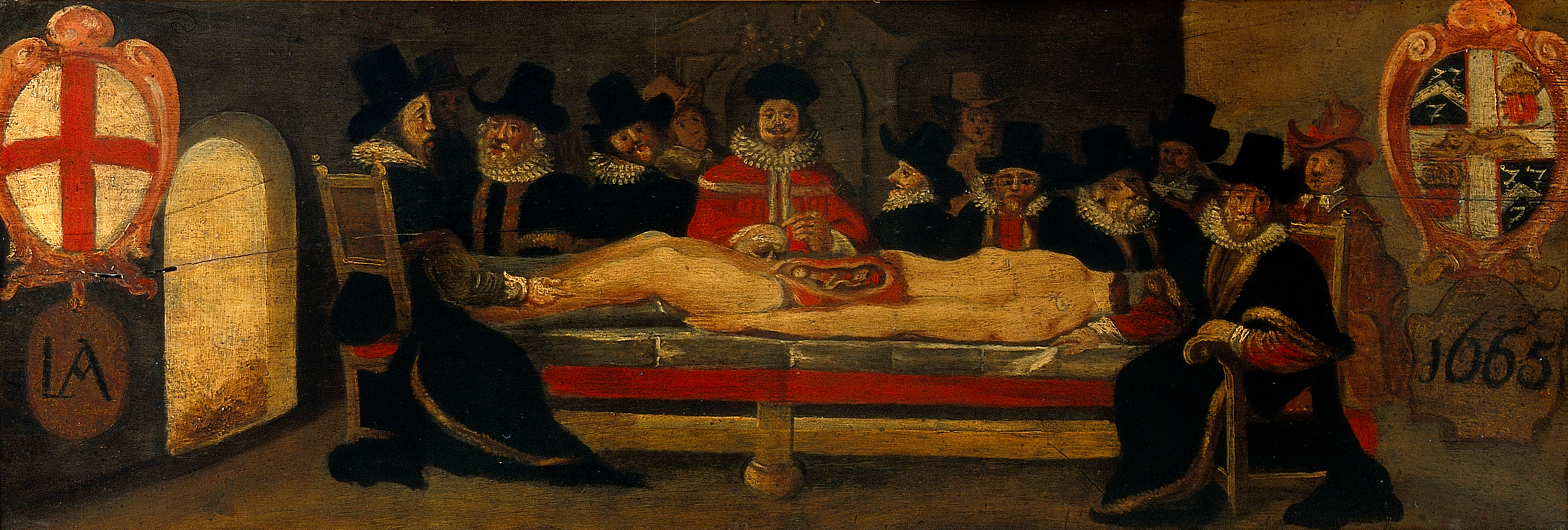 File:The dissection of a corpse before a company of surgeons (?).