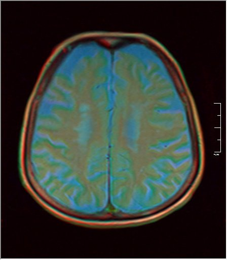 Brain MRI 0198 05.jpg