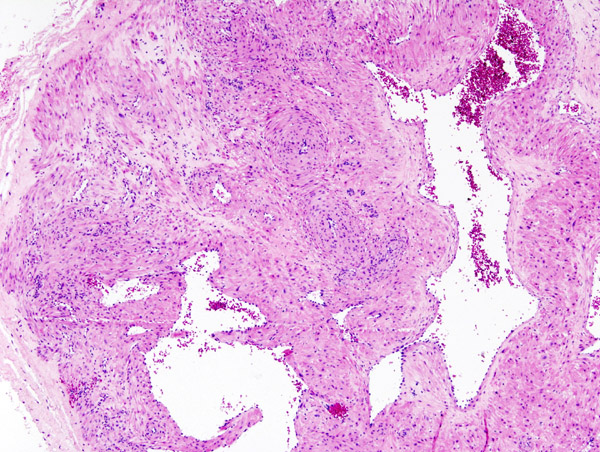 File:Cutaneous angiomyoma (1).jpg