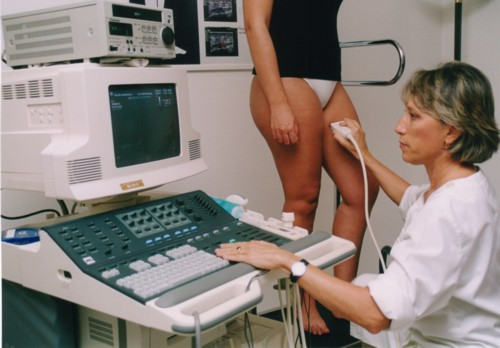 Medical Charting: Lower limbs venous ultrasonography - Wikipedia,Chart