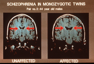 the clinical description of the severe mental illness schizophrenia Schizophrenia is a serious brain disorder that distorts the way a person thinks, acts, expresses emotions, perceives reality, and relates to others people with schizophrenia-- the most chronic.