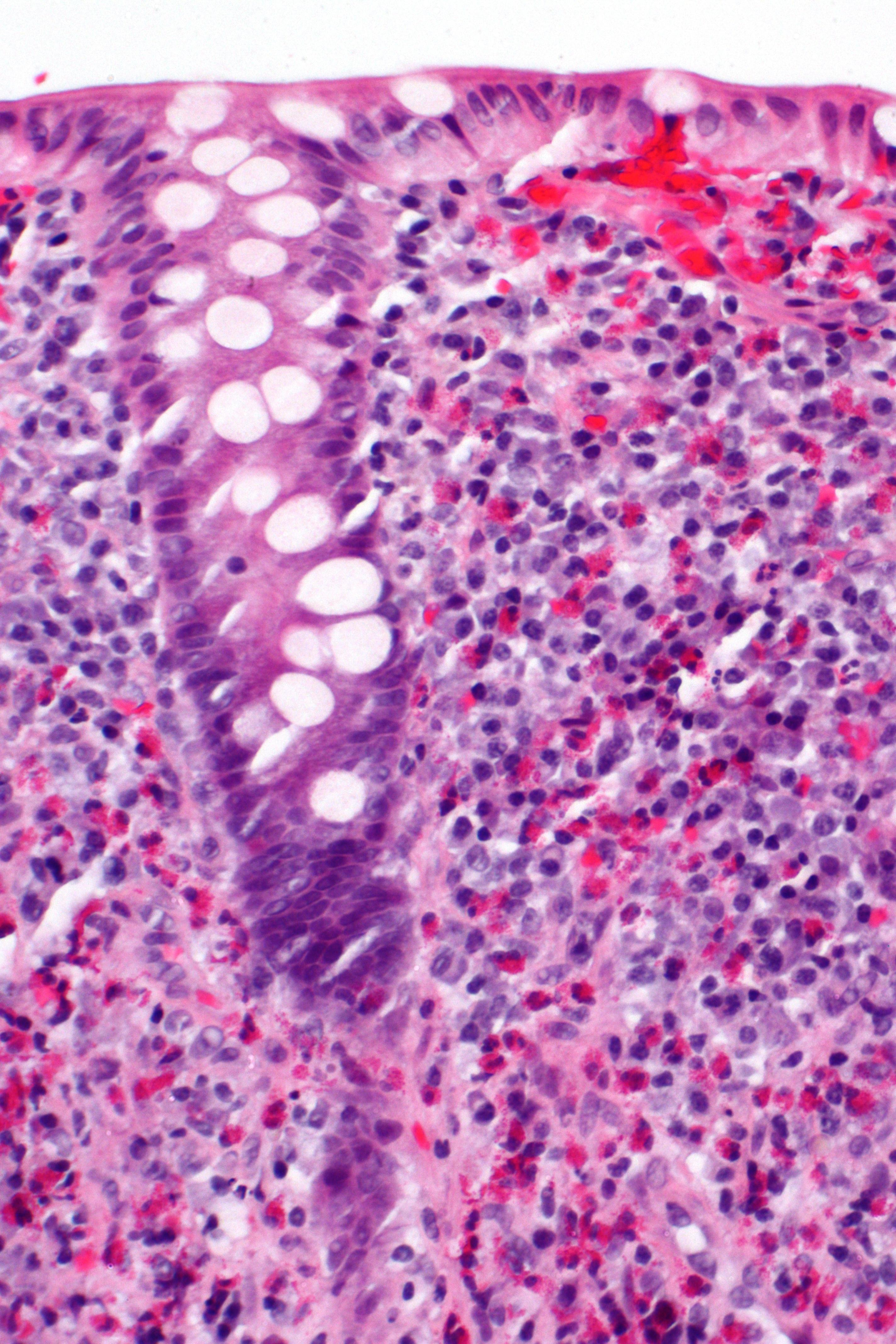 Eosinophile Colitis