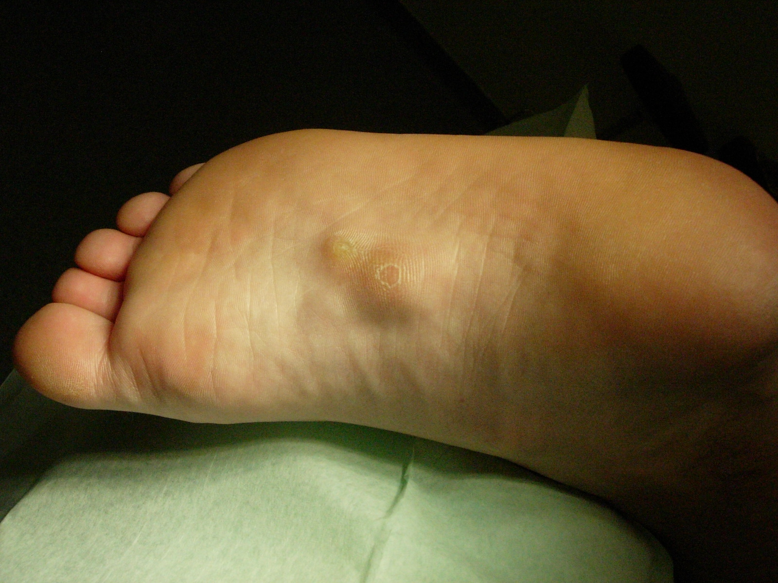 Round Hard Bumps On My Heel And Running Shoes