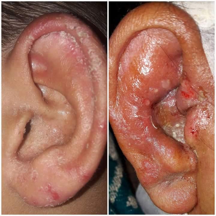 infección bacteriana por picazón en el ano