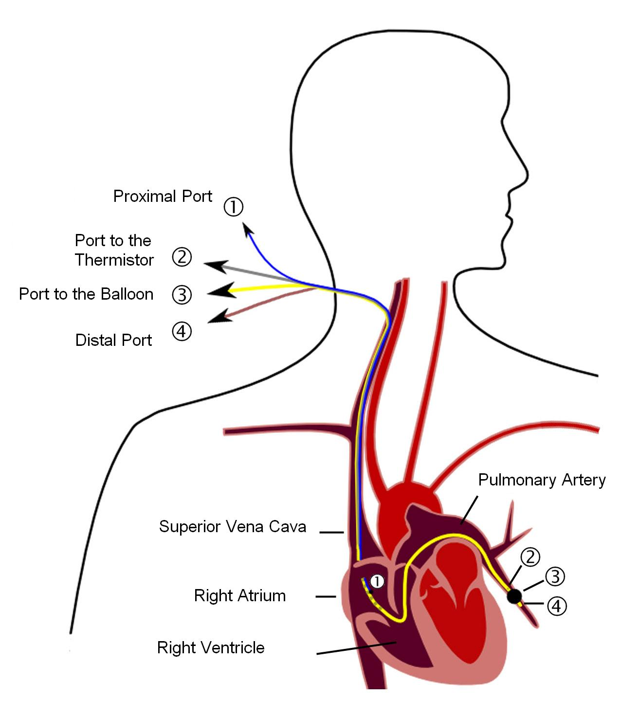 Pulmonary artery catheter - Wikipedia