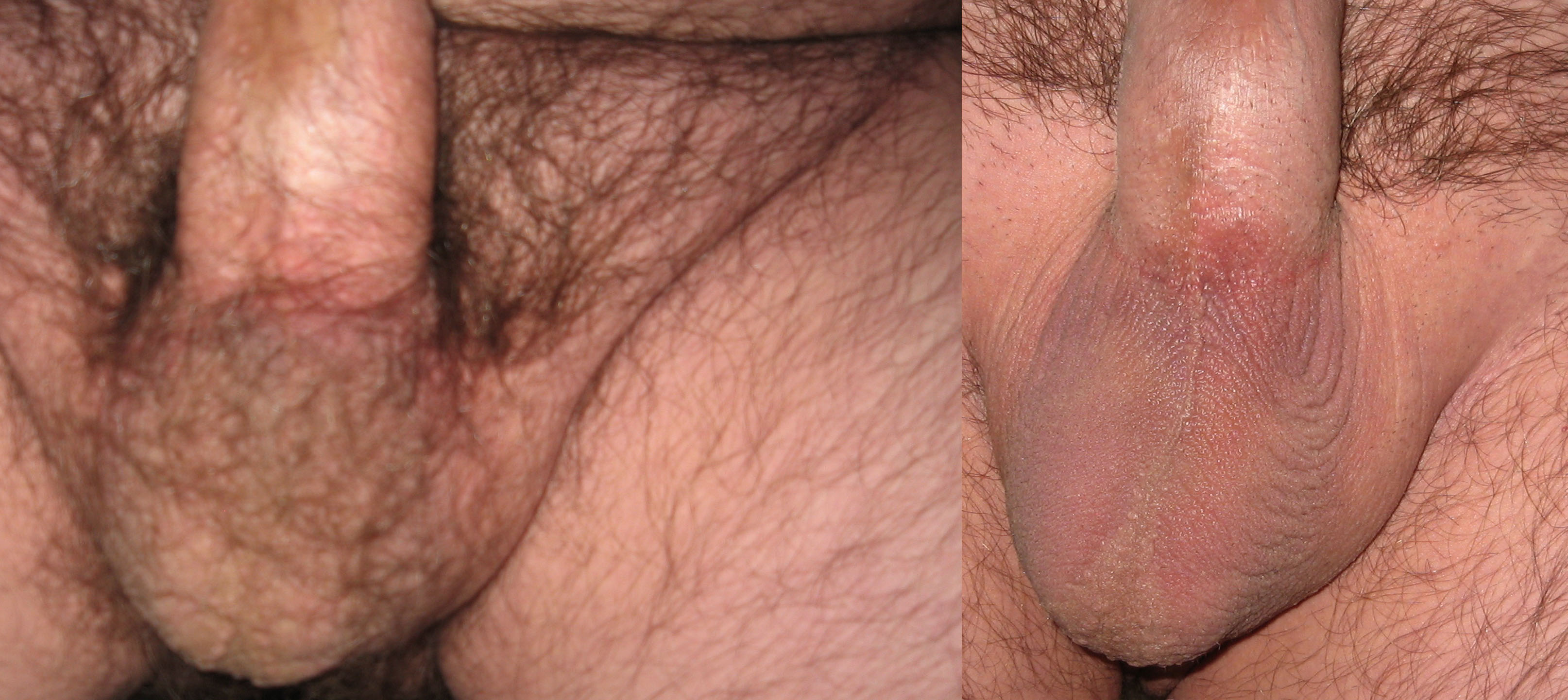 Usually, you shaved testicle pics Feige and