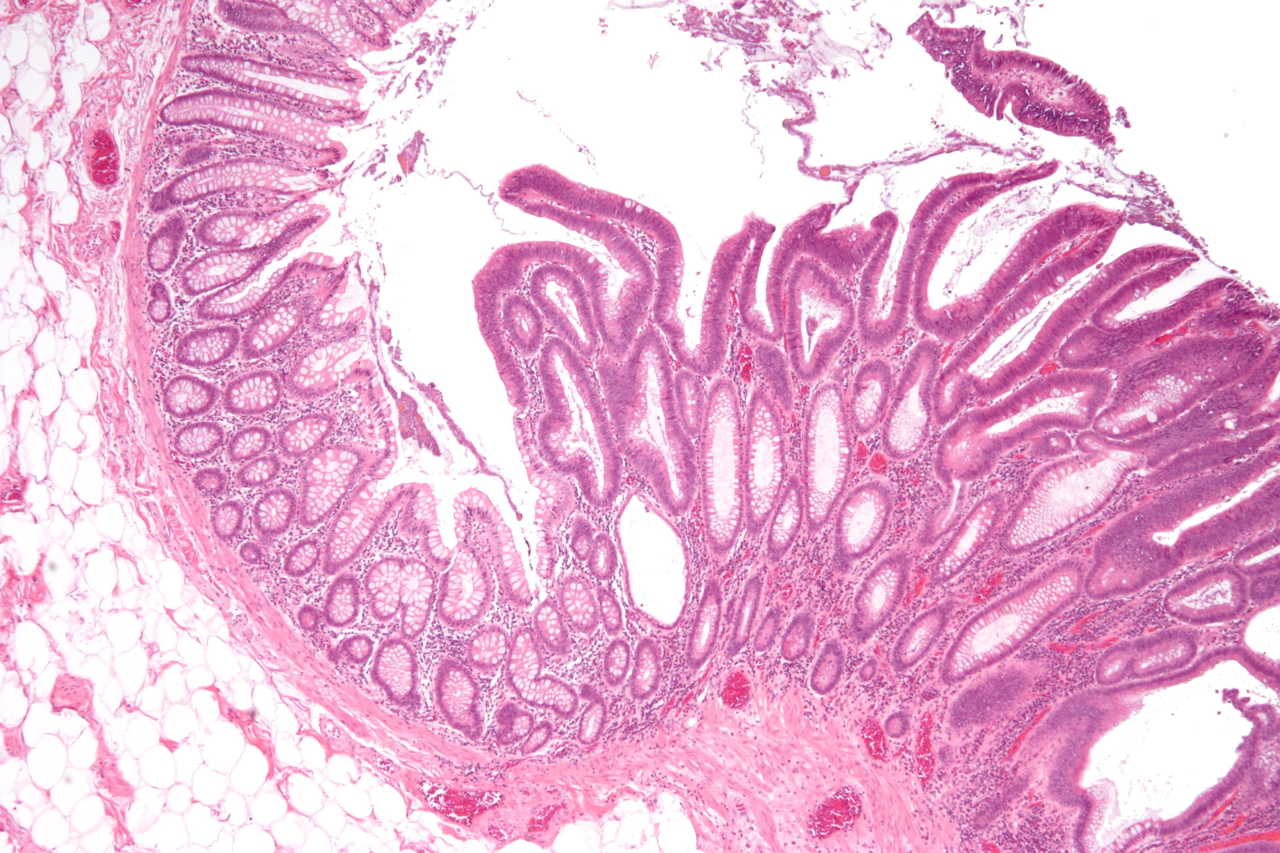 Что такое тубулярная аденома молочной железы 17