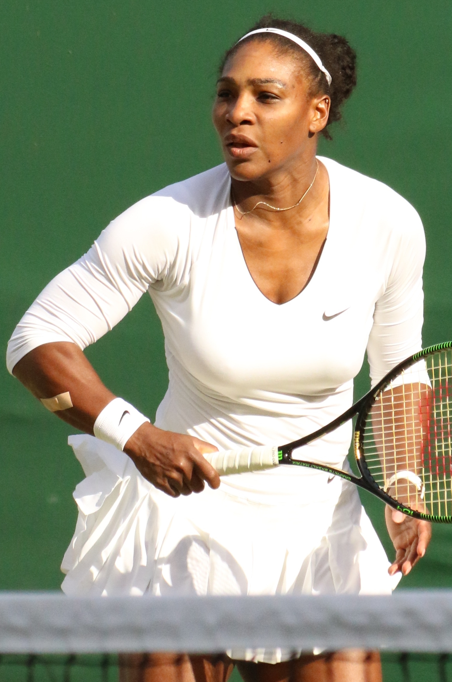 Speaking, tennis player needs breast reduction