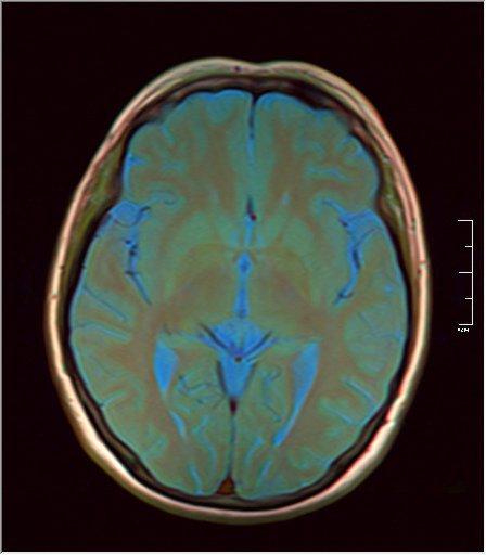 Brain MRI 0076 10.jpg