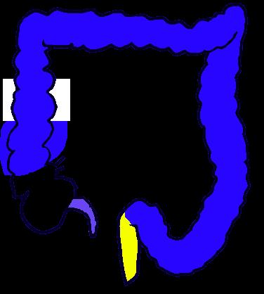 sigmoid colon - wikipedia, Cephalic Vein