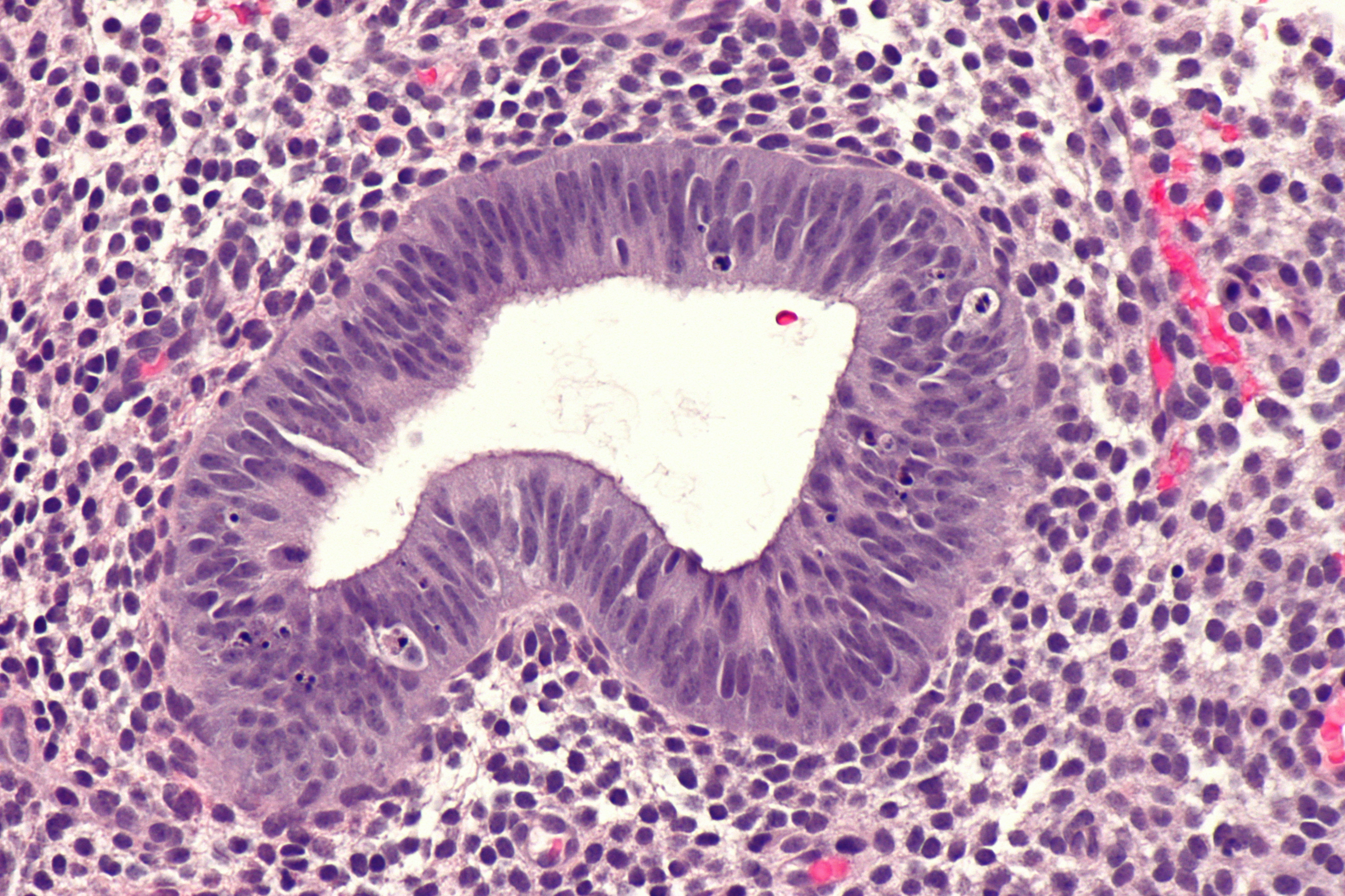 endometrial dating histopathology