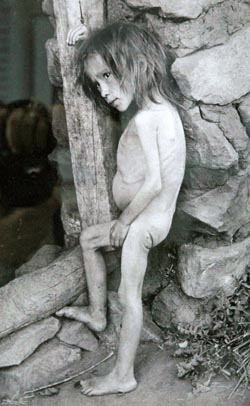 Starving Russian girl during the Russian famine of 1921 Girl affected by famine in Buguruslan, Russia - 1921.jpg