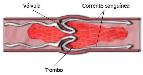 trombo-anticonceptivos