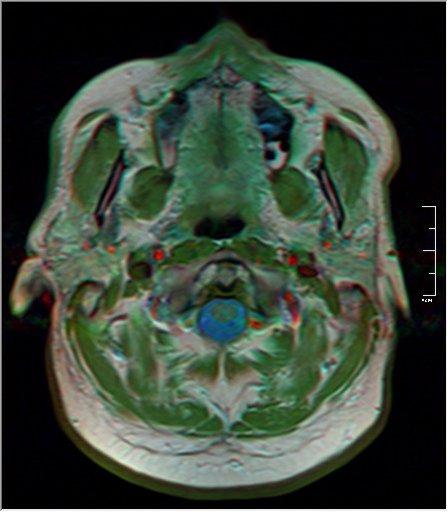 Brain MRI 0259 20.jpg
