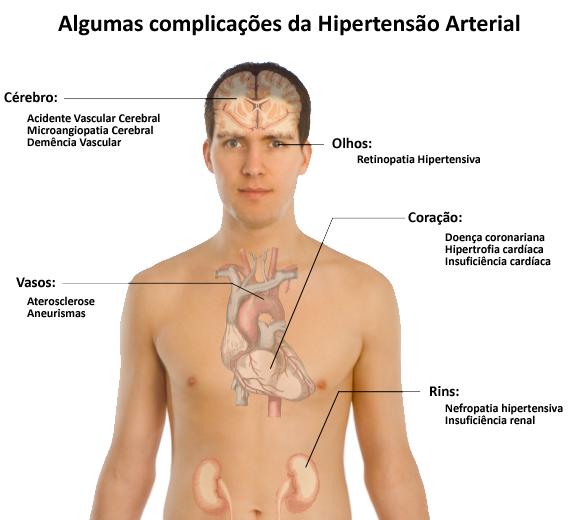 File:Complicações da hipertensão arterial.png - Wikimedia Commons: https://commons.wikimedia.org/wiki/File:Complicações_da...