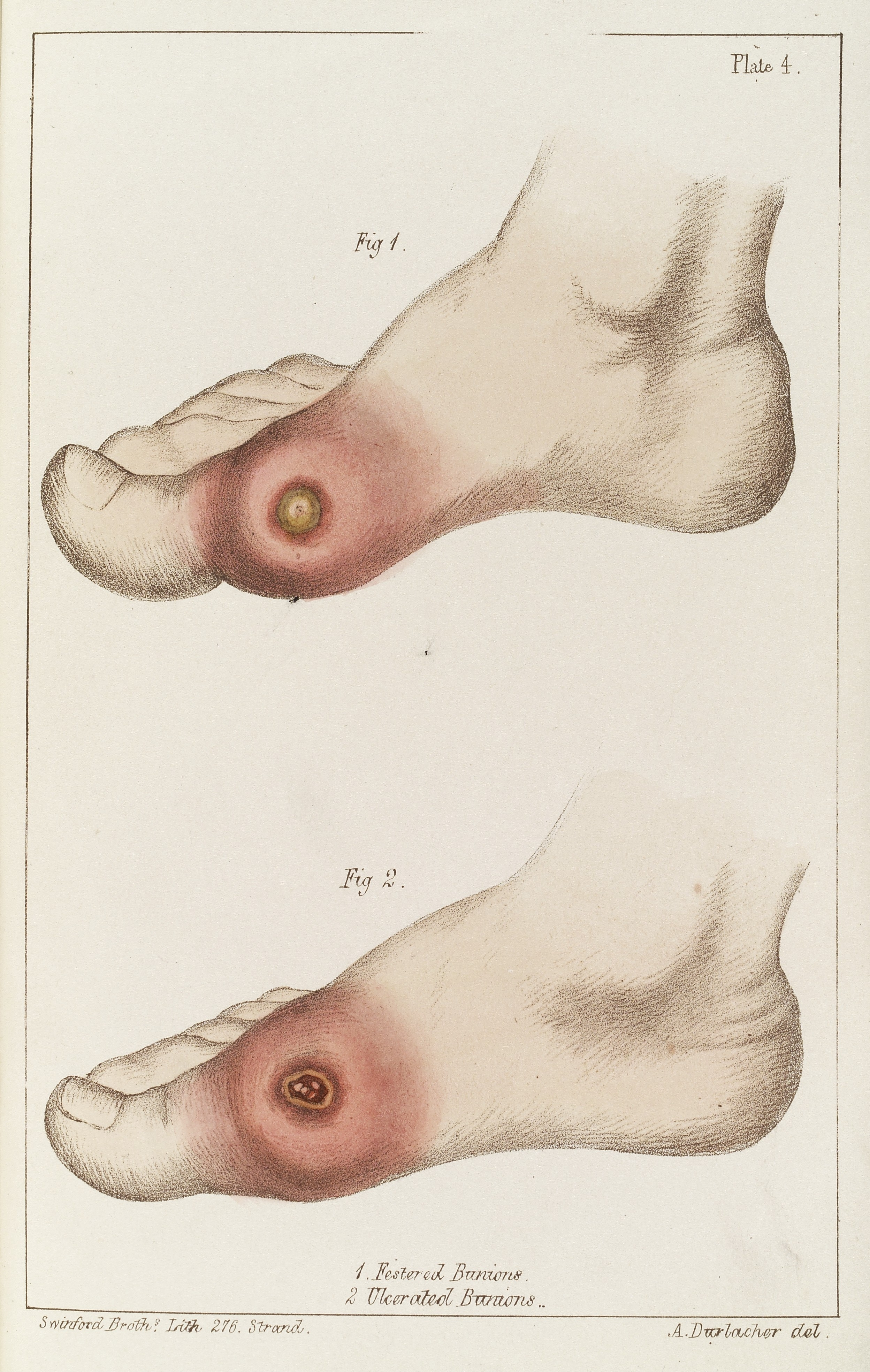 Different Types Of Festivals: File:Feet Showing Different Types Of Bunions Wellcome