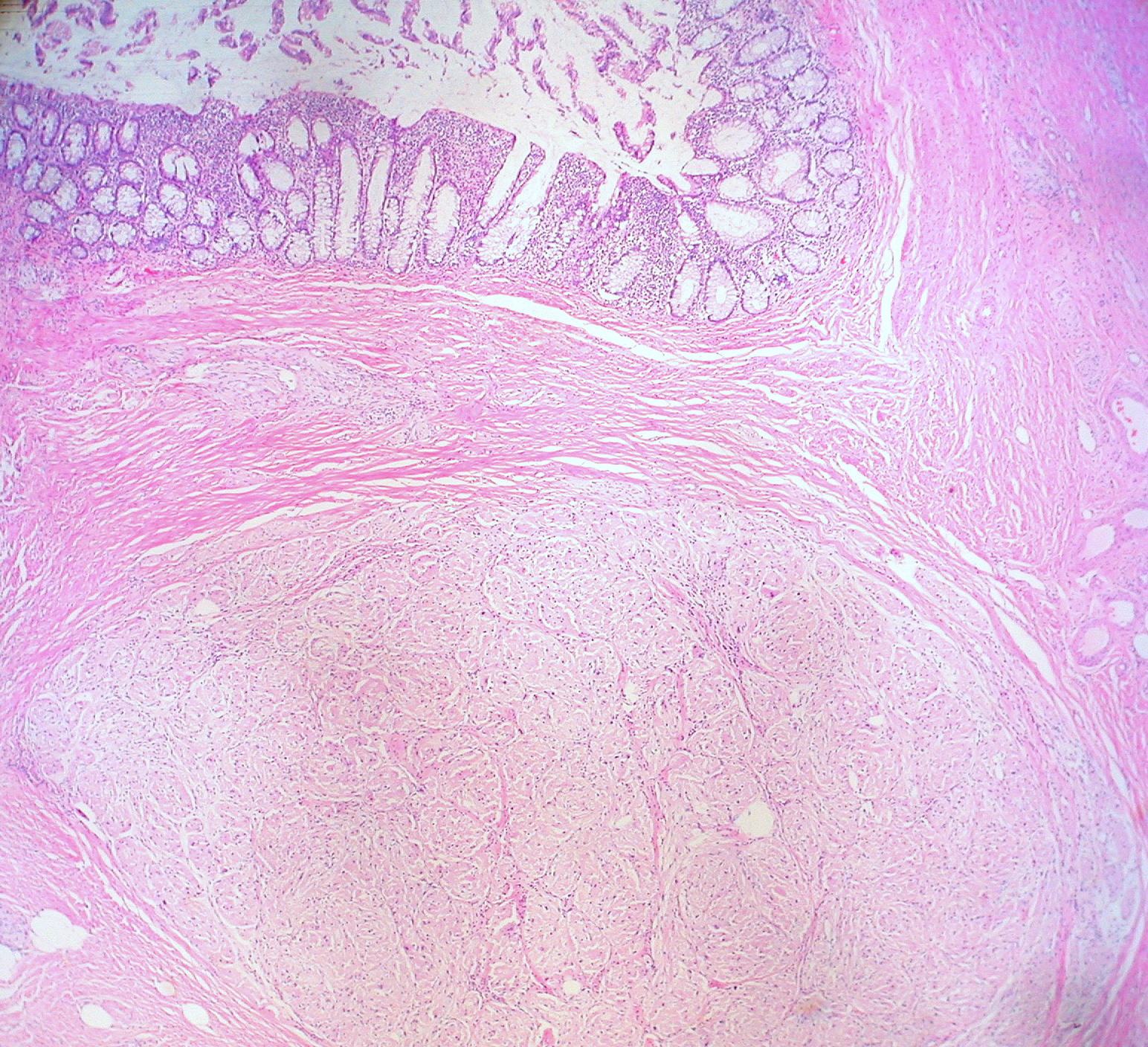You have anus cell granular tumor think