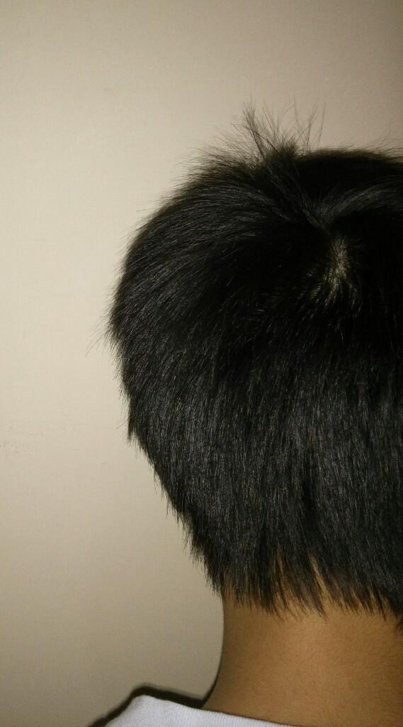 File:Back view of teen boys head - 2.jpeg - Wikimedia Commons