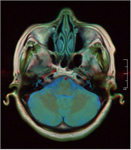 Brain MRI 0213 16.jpg