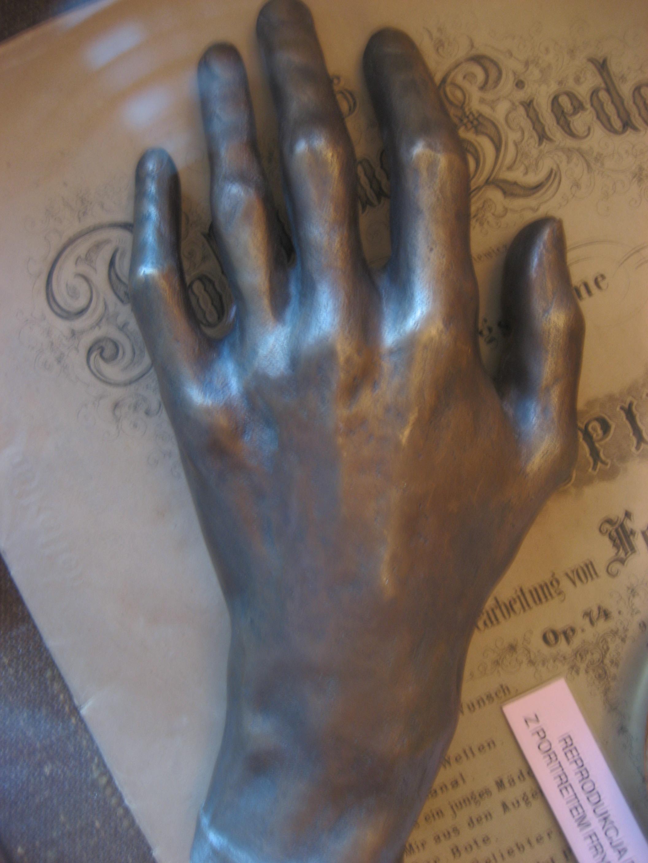 Molde póstumo de la mano izquierda de Chopin.