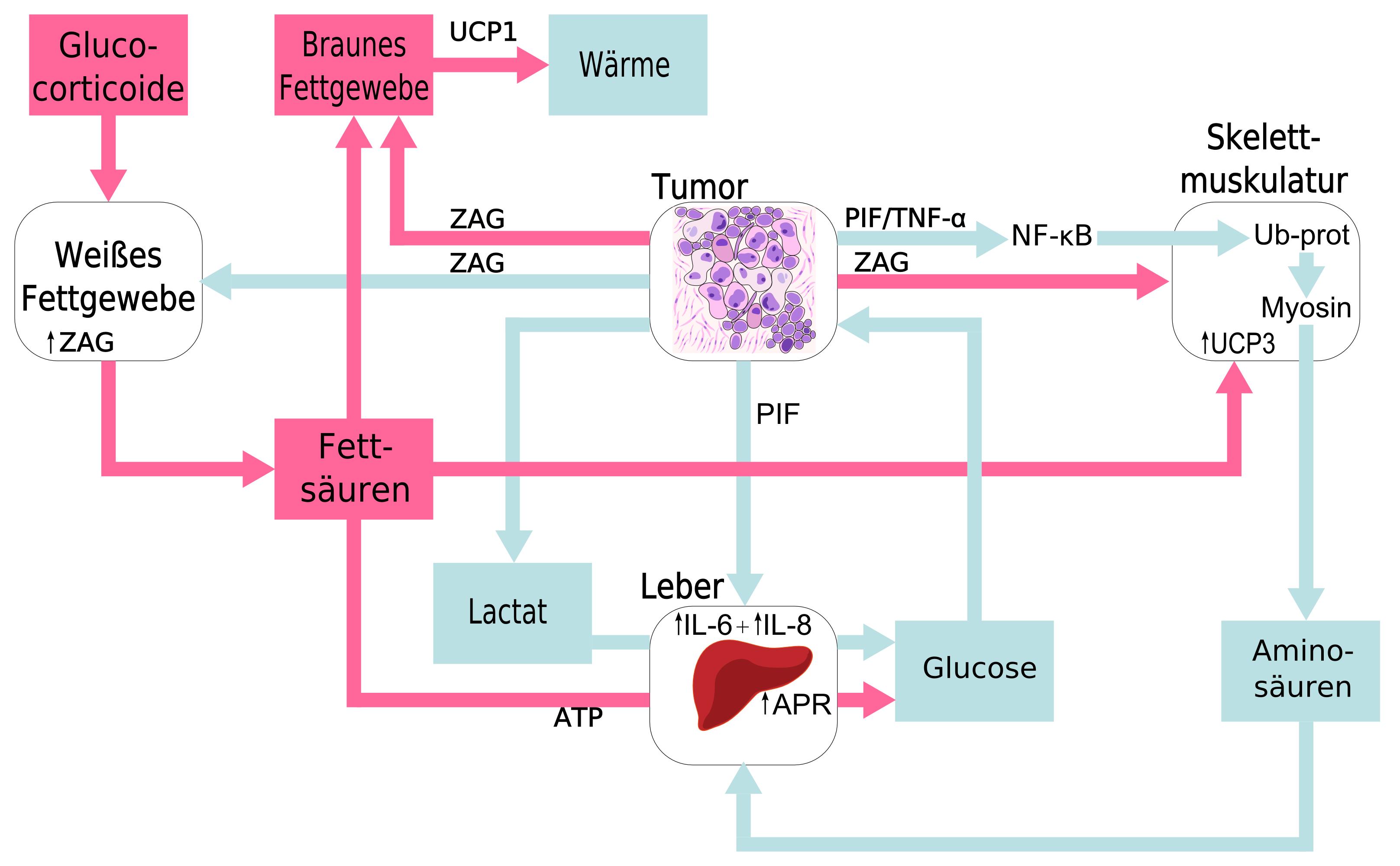gründe zunahme bauchspeicheldrüsenkrebs
