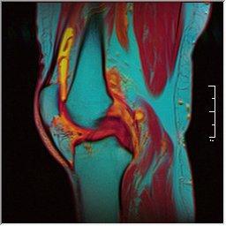 Knee MRI 0025 09 pdfs t1 t2 59f.jpg