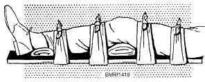 File:Kneecap splint.jpg