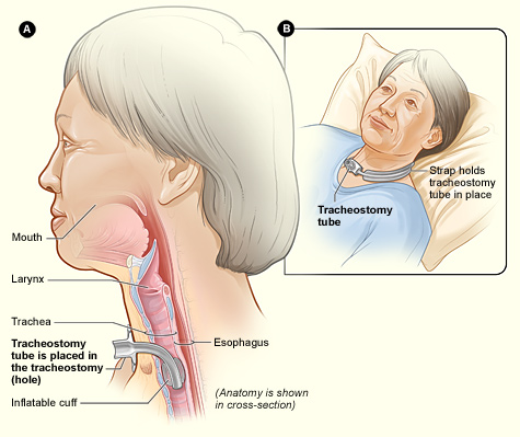 Figure A Shows Side View Of The Neck And Correct Placement Tracheostomy Tube In Trachea Or Windpipe B An External