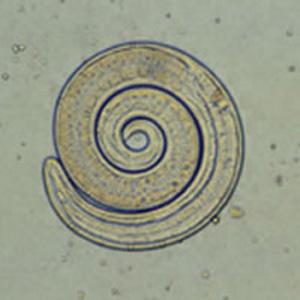 Trichinella spiralis, enrrollada en forma de espiral, de donde le viene el nombre