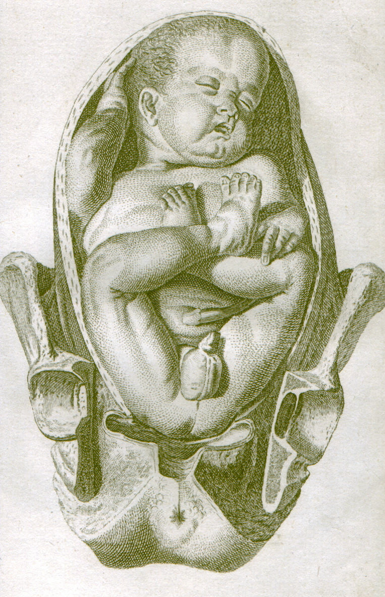 Breech Birth Wikipedia