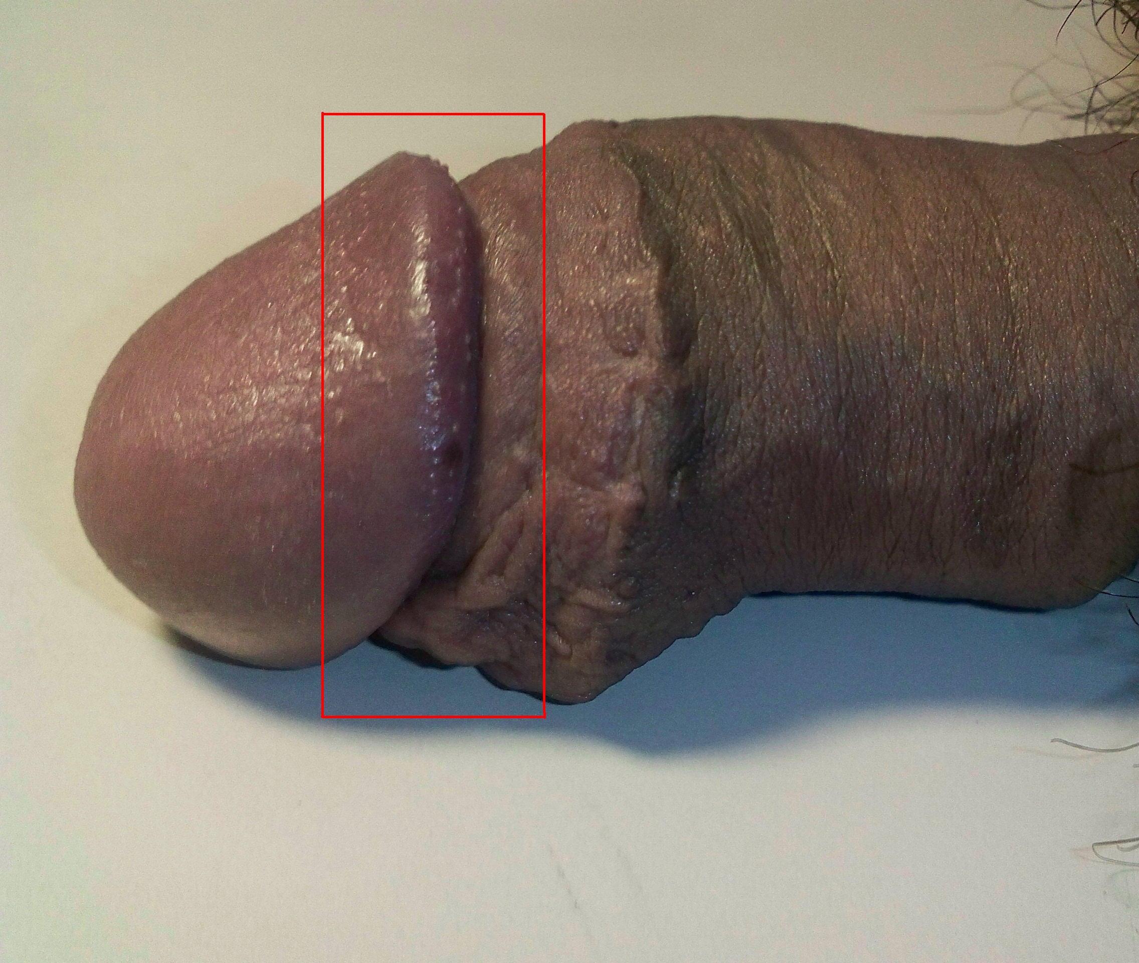 Corona ring penis