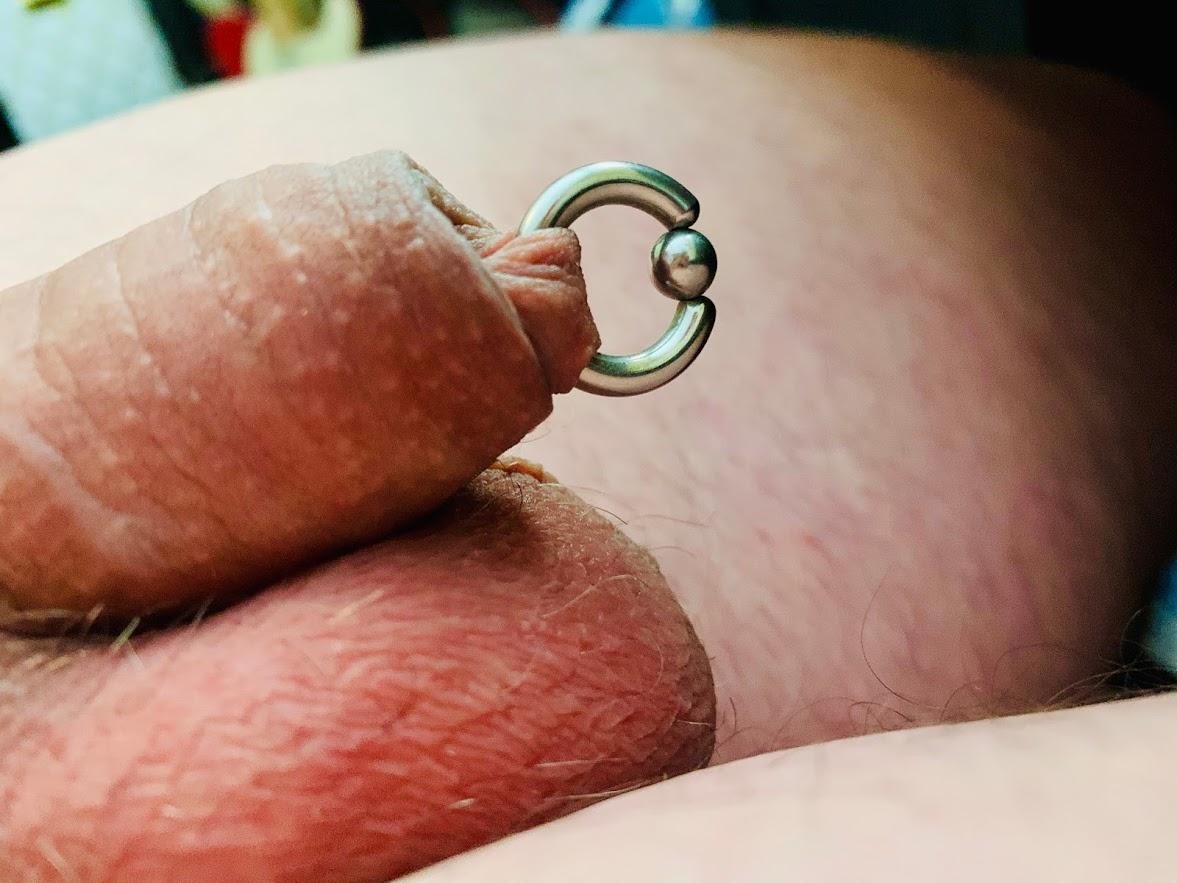 Piercing foreskin Paraphimosis: Symptoms,