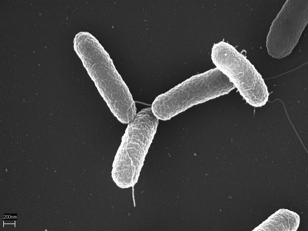 alimentos contaminados con salmonella typhi