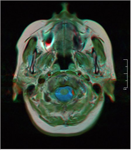 Brain MRI 0153 20.jpg