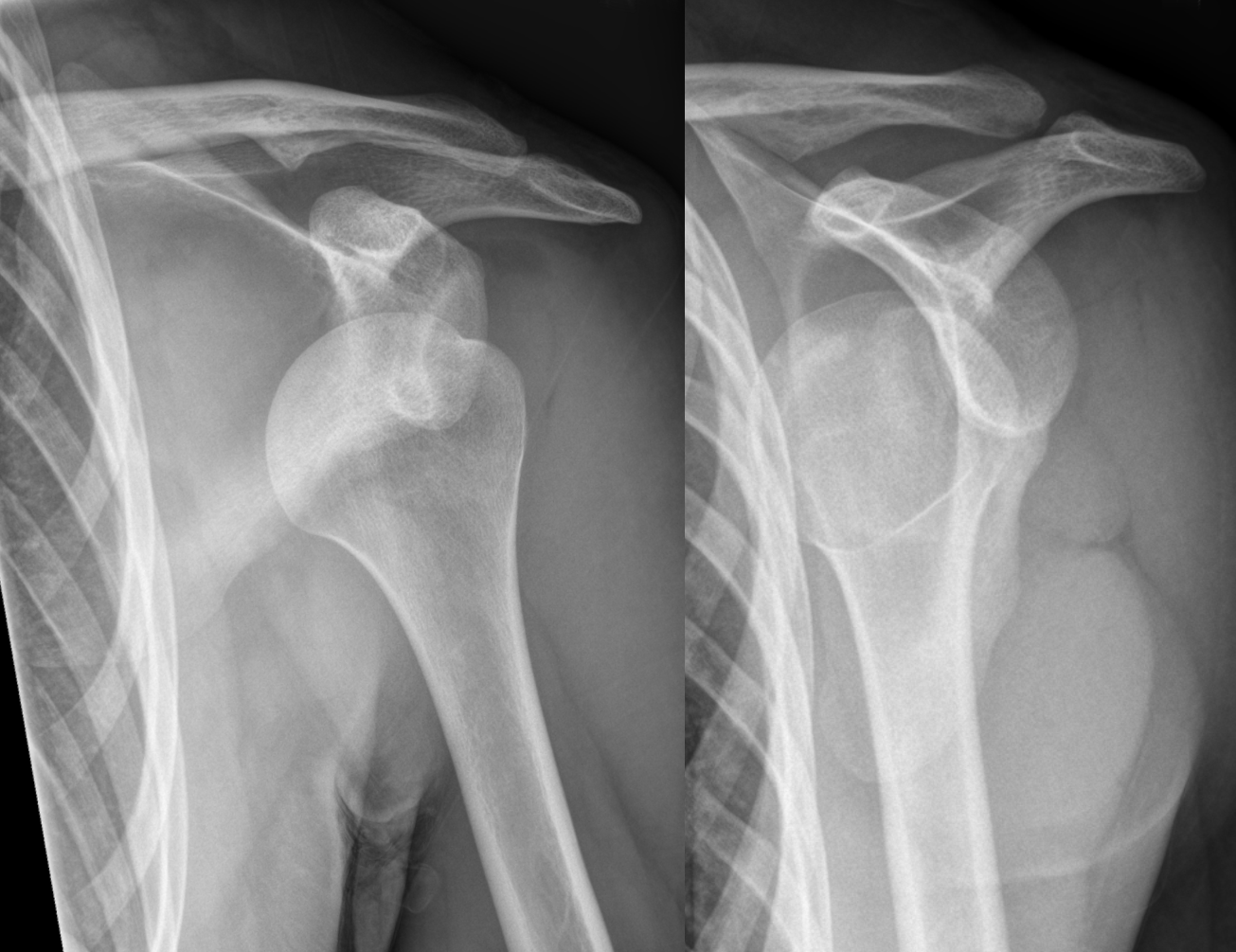 Dislocated shoulder - Wikipedia