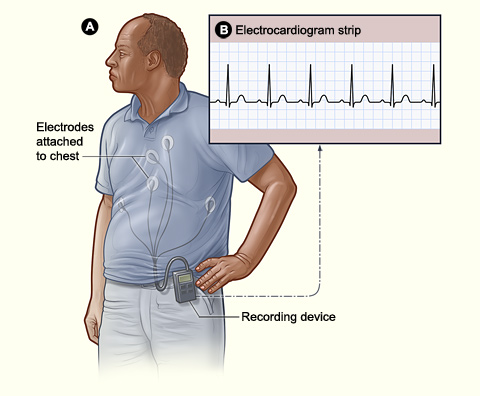 Heart Palpitations Day After Drinking Alcohol