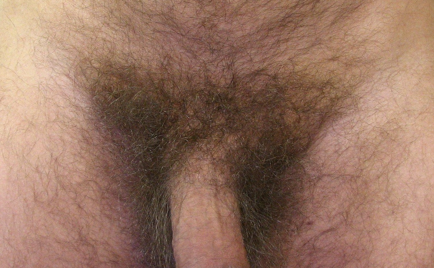 волосы на половых членах фото если